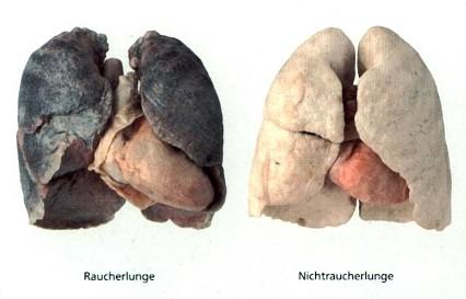 Nachdem der Mensch Rauchen aufgegeben hat wird wieder hergestellt